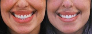 Гиперактивная верхняя губа