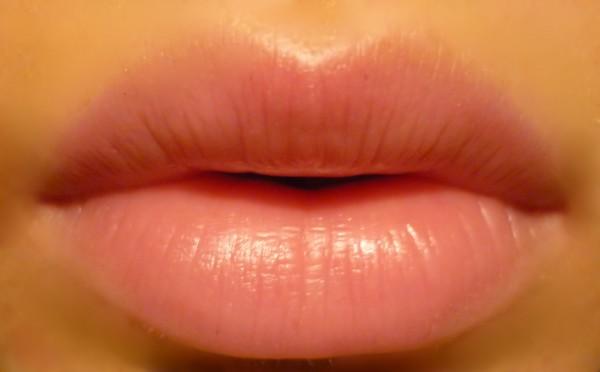 Увеличить губы гиалуроновой кислотой